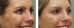 Botox en Sevilla - Antes y Después :: Central Clinic :: Medicina Estética Sevilla