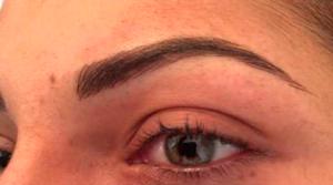 Micropigmentación :: Medicina Estética :: Central Clinic Sevilla