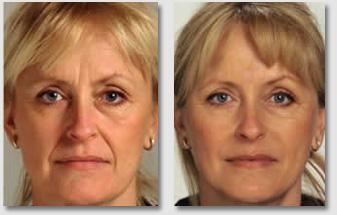 Relleno Facial Sevilla - Antes y Después - Central Clinic