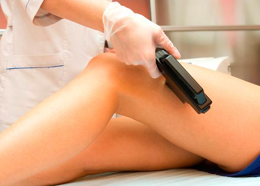 Depilación Laser Alejandrita :: Medicina Estética :: Central Clinic Sevilla
