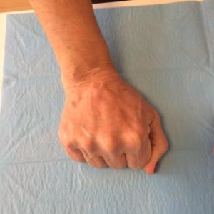 Hidroxiapatita Cálcica :: Medicina Estética :: Central Clinic Sevilla